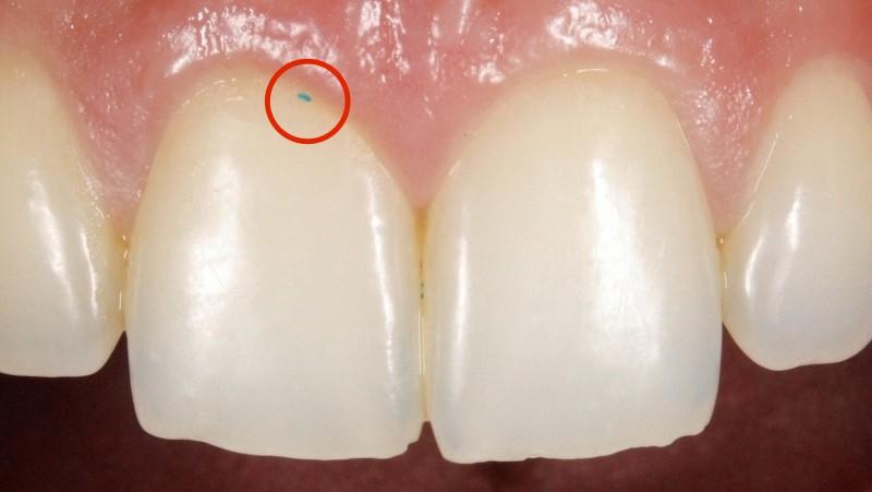 MicroEsferas: Estas partículas minúsculas podem danificar os seus dentes