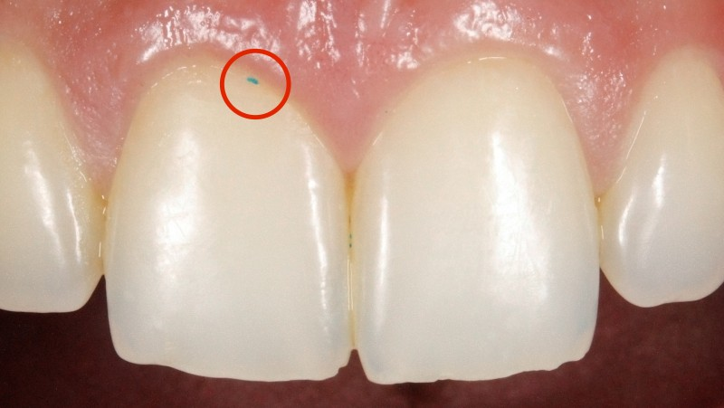 microesferas nas pastas de dente branqueadoras