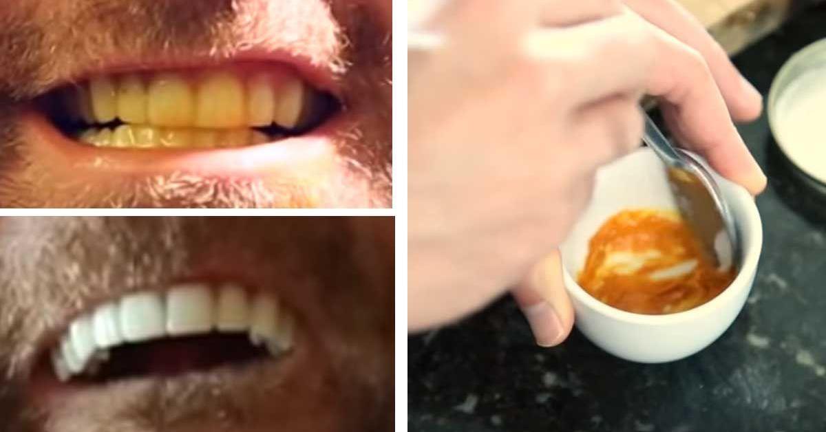 Branqueador De Dentes Caseiro Totalmente Natural