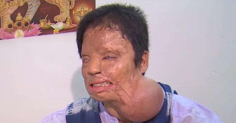 Essa jovem foi atacada por 3 homens que jogaram ácido nela. Veja como ela ficou 10 anos depois!