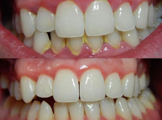 Tartaro Como Elimina Lo Sem A Ajuda Do Seu Dentista