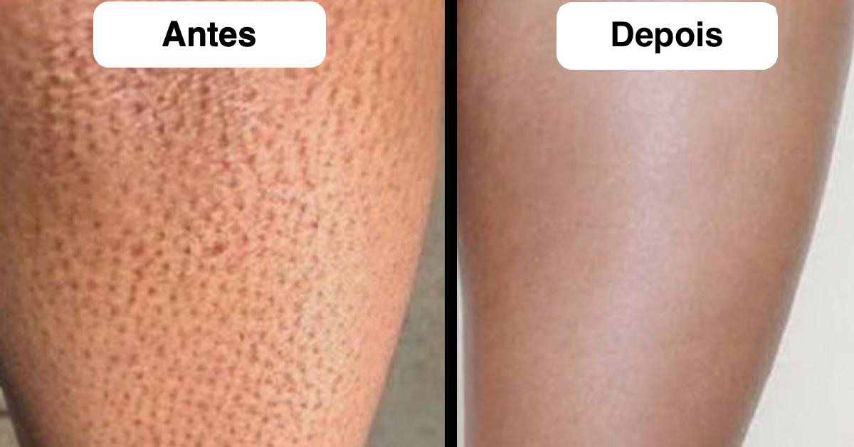Impedir que escuras raspe como as manchas se
