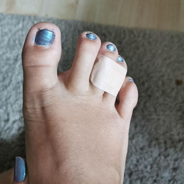 Dedos presos com curativo