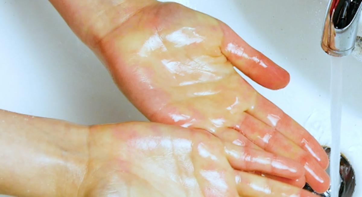 Tirar graxa das mãos