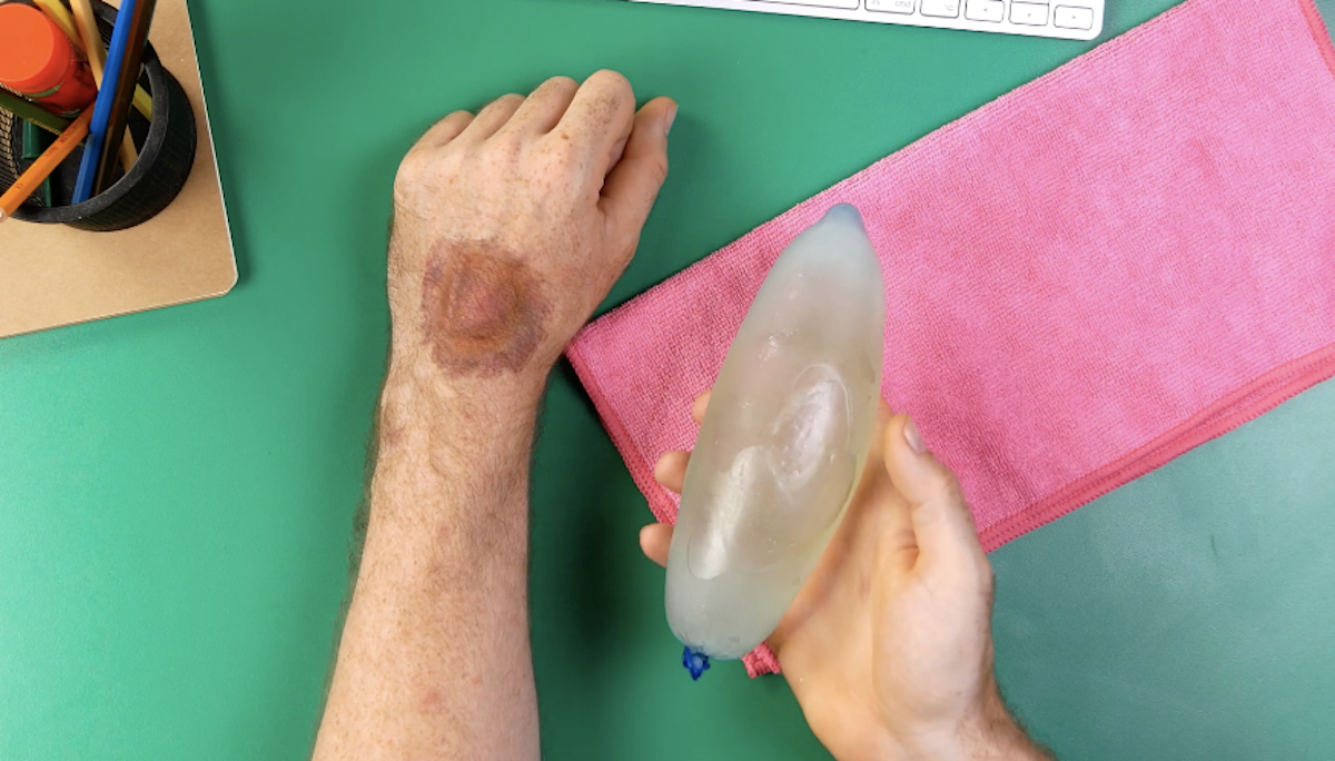 preservativo cheio de água